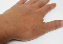 症状 日光アレルギー